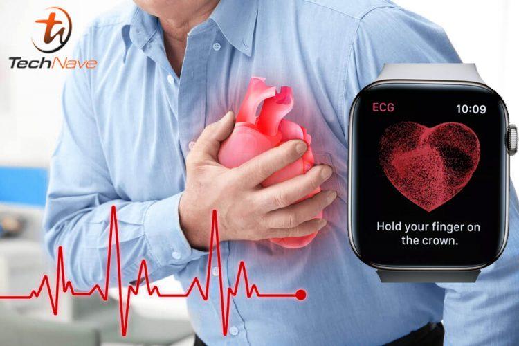 研究发现Apple Watch可检测到心脏重病!